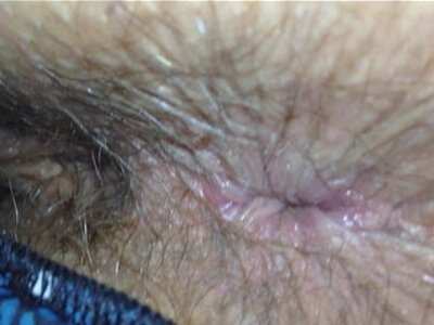 Wife Shit Stained Hairy Arsehole Inspection | -anus-hairy-wife-